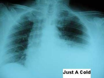 Just a Cold, by doneidman on OurStage